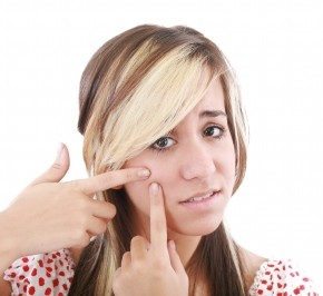 <b>Foods to avoid for acne</b>